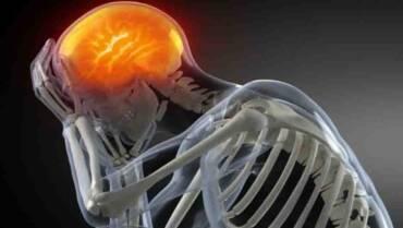 TENGO DOLOR de CABEZA, ¿voy a Fisioterapia o me tomo un analgésico?