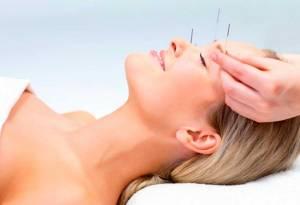 acupuntura para dolores de cabeza en fuengirola