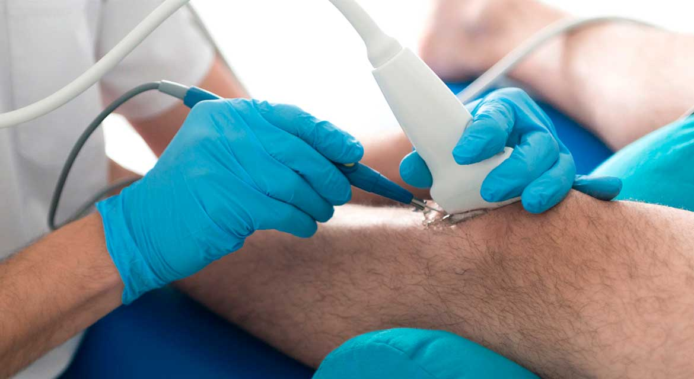 fisioterapia-invasiva-ecoguiada-1.jpg