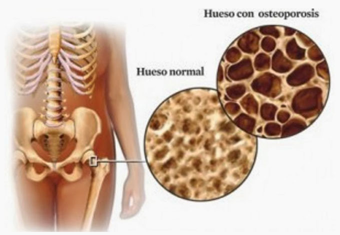 OSTEOPOROSIS, enfermedad silenciosa ¿qué es?
