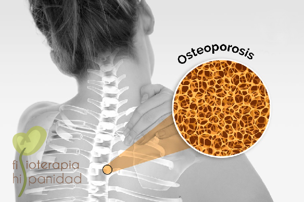 osteoprosis-blog.png