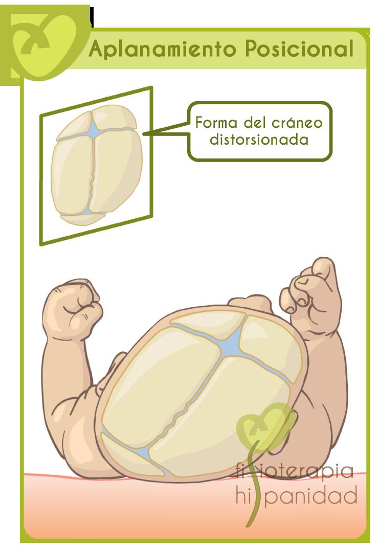 plagiocefalia-craneo-distorsionado.png