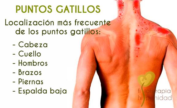 puntos-gatillos-localizacion-fisioterapia-fuengirola.png