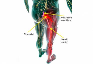 ¿Qué es el síndrome del Piramidal?