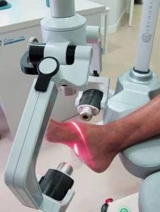 Laserterapia en Fuengirola